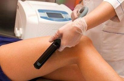 Удаление волос на ногах с помощью светодиодного лазера