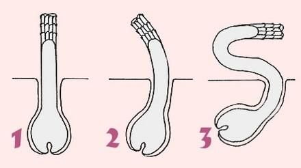 Типы волос и волосяных луковиц